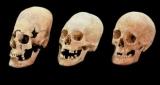 Знайдені у Німеччині витягнуті черепа виявилися нареченими зі сходу